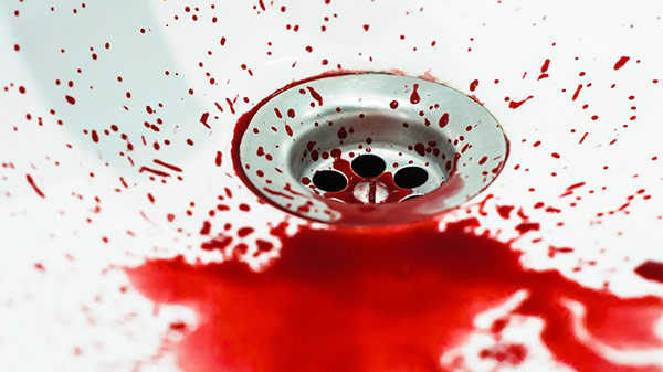 ฝันเห็นเลือด